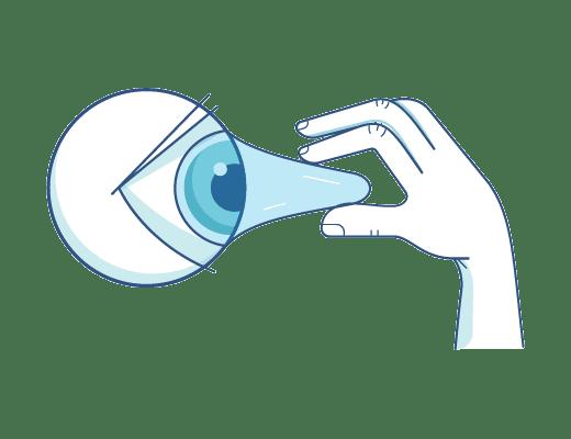 Extracción de contactos de un ojo